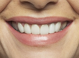Closeup of healthy beautiful teeth and gums